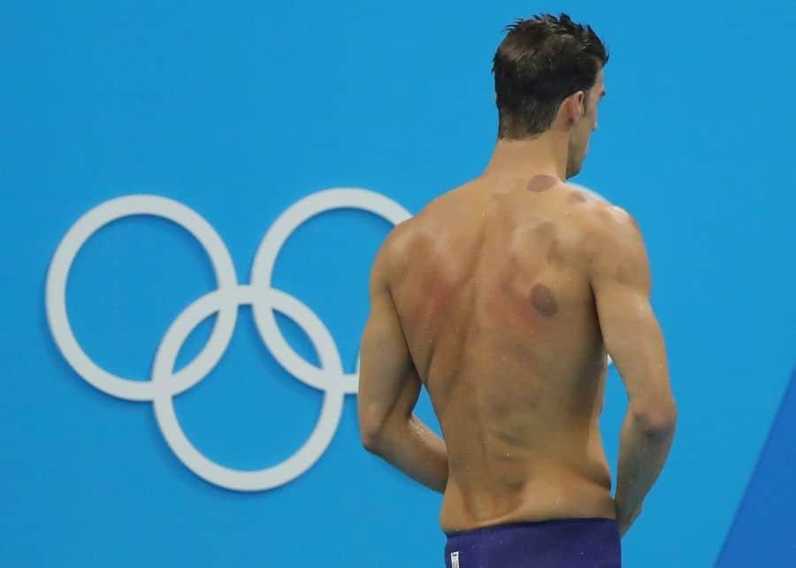 นักกีฬา ครอบแก้ว ปวดหลัง