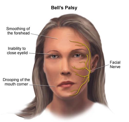 Bell's palsy อัมพาตครึ่งหน้า